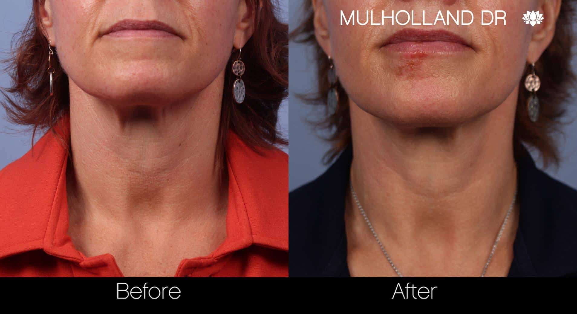 Neck Lift - Before and After Gallery - Patient Photo 49