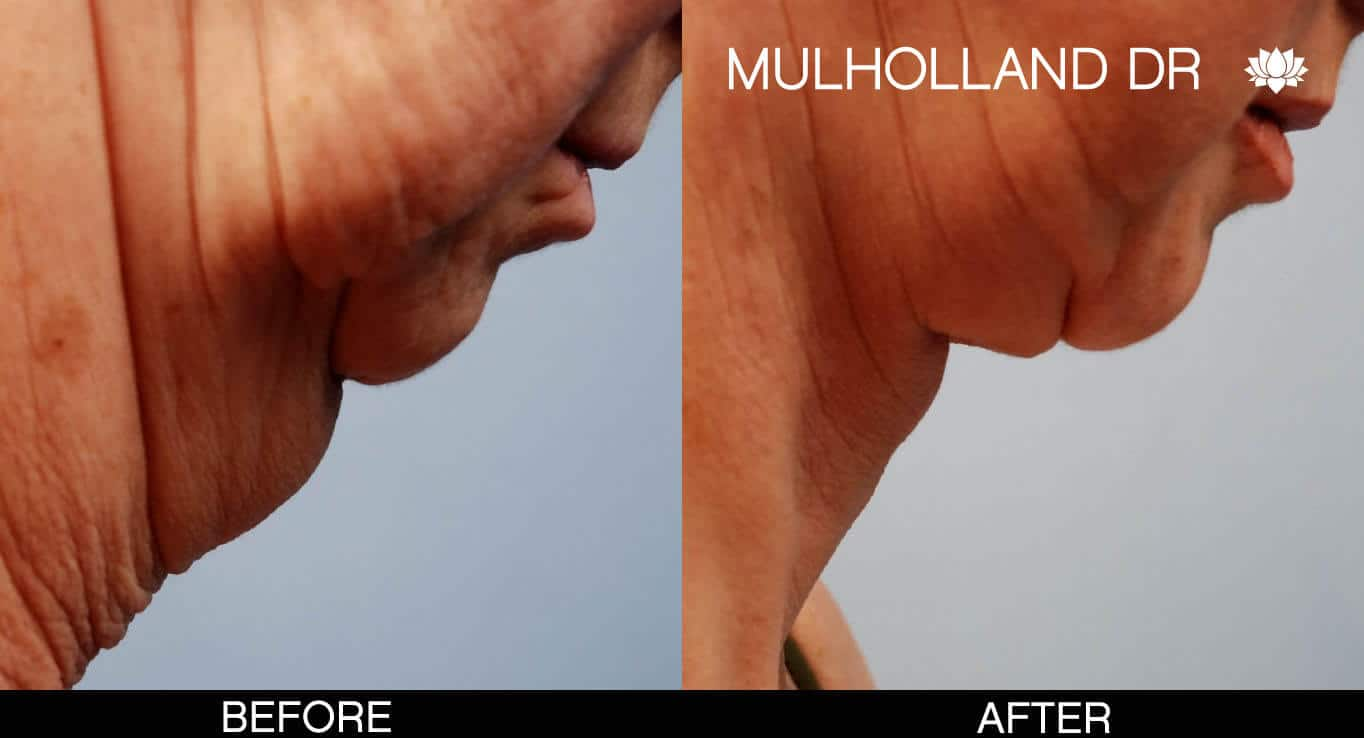 Neck Lift - Before and After Gallery - Patient Photo 5