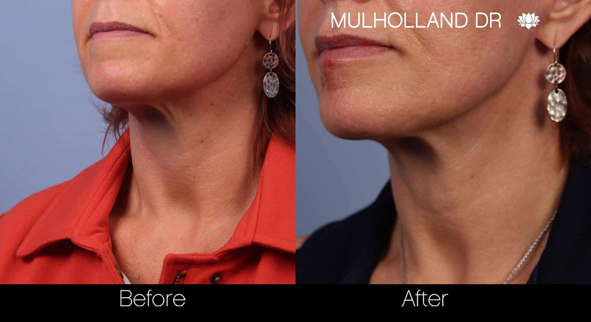 Neck Lift - Before and After Gallery - Patient Photo 50