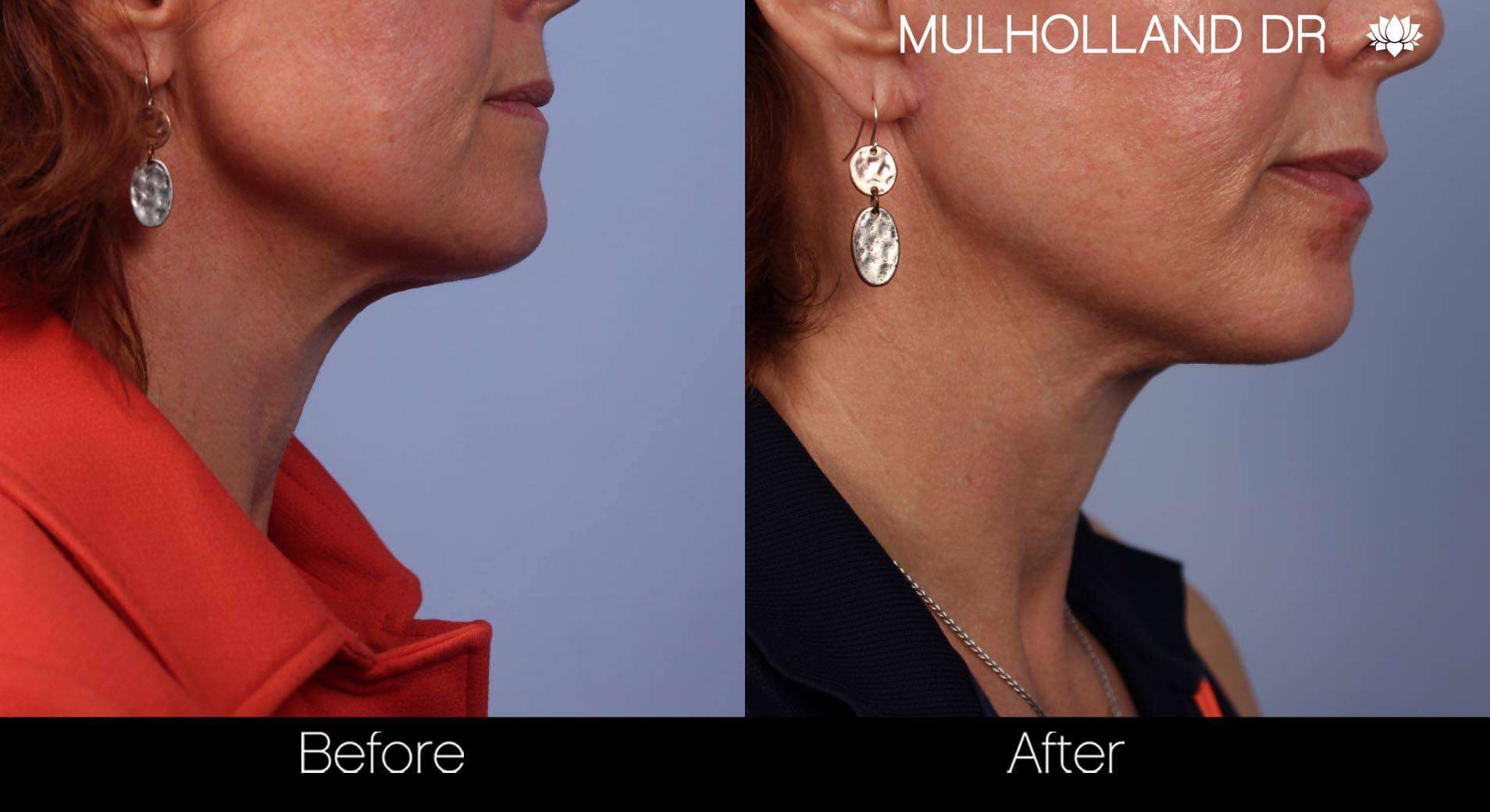 Neck Lift - Before and After Gallery - Patient Photo 52