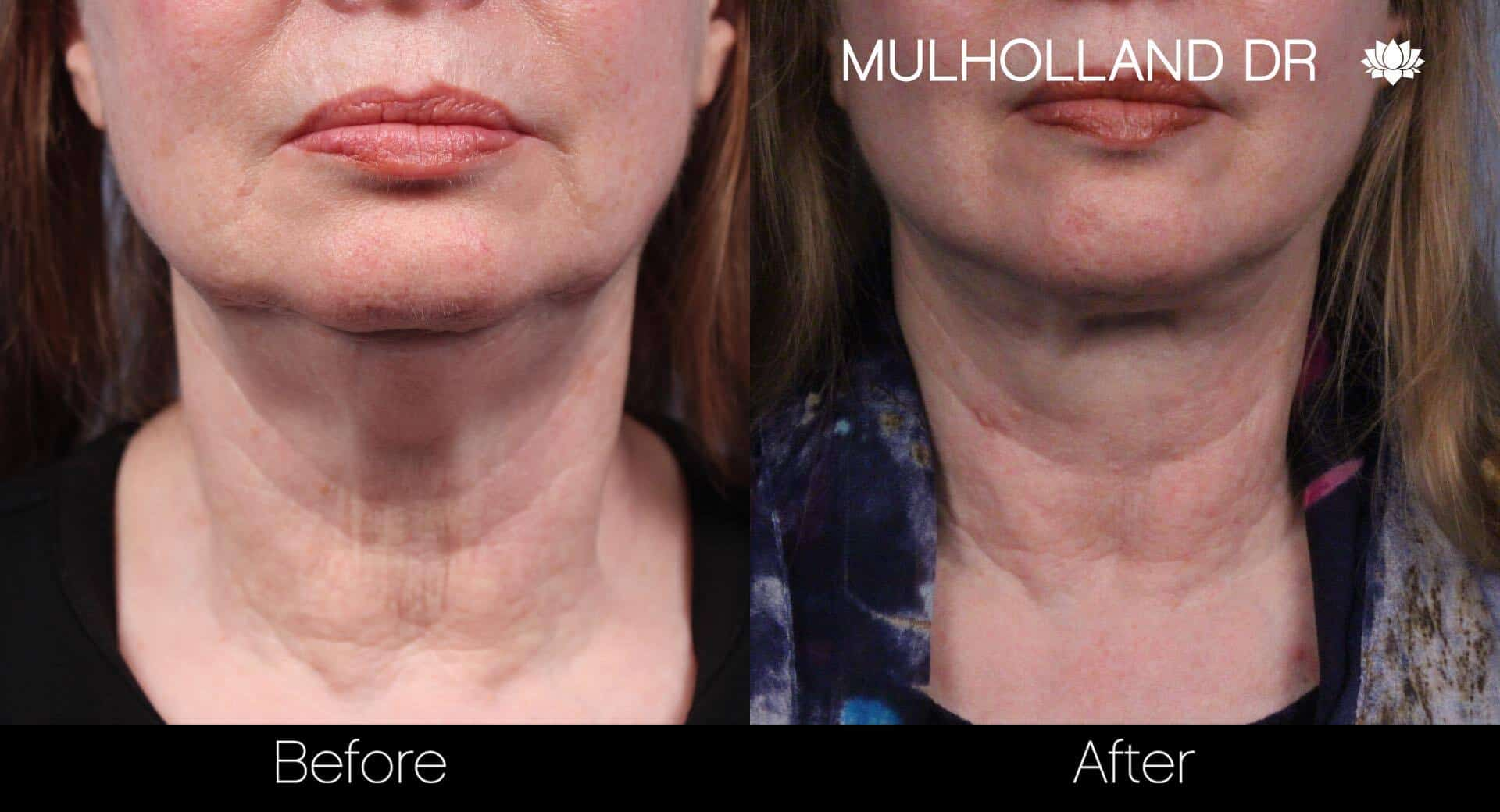 Neck Lift - Before and After Gallery - Patient Photo 54