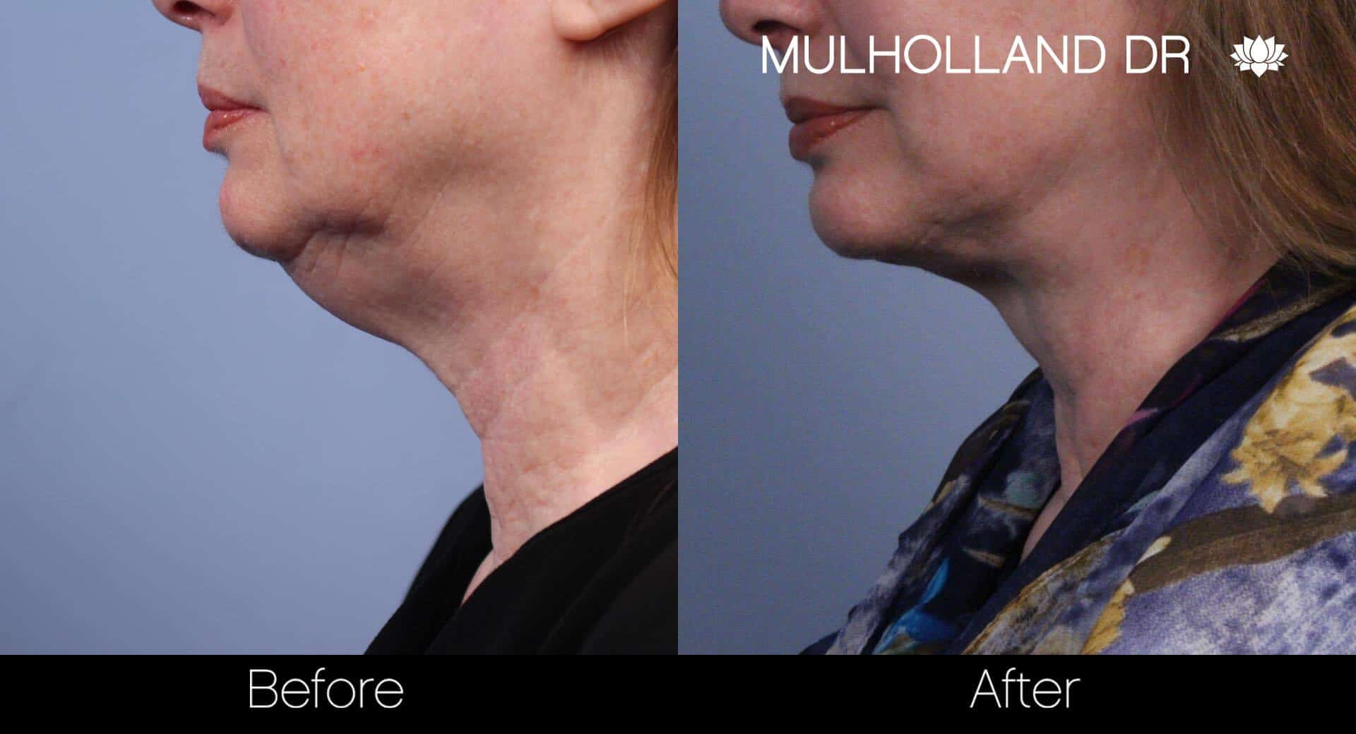 Neck Lift - Before and After Gallery - Patient Photo 56