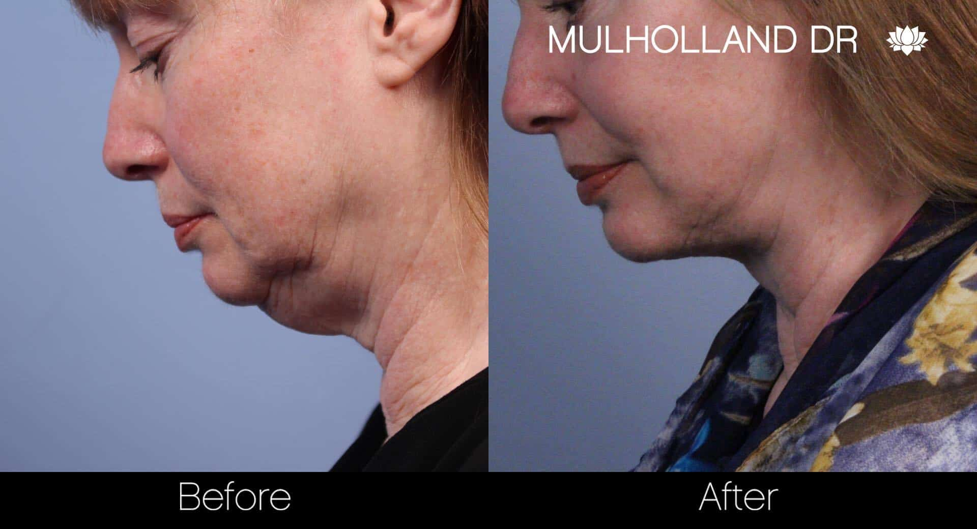 Neck Lift - Before and After Gallery - Patient Photo 57