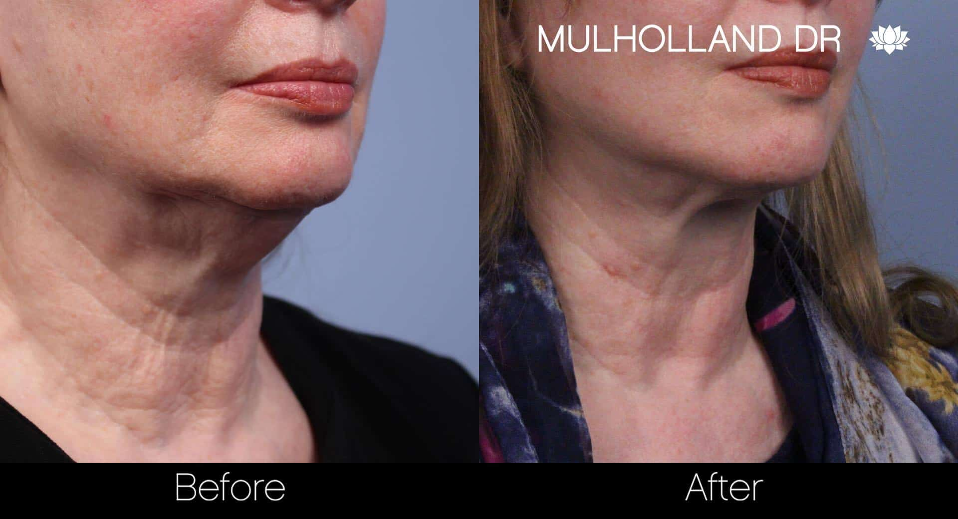 Neck Lift - Before and After Gallery - Patient Photo 58