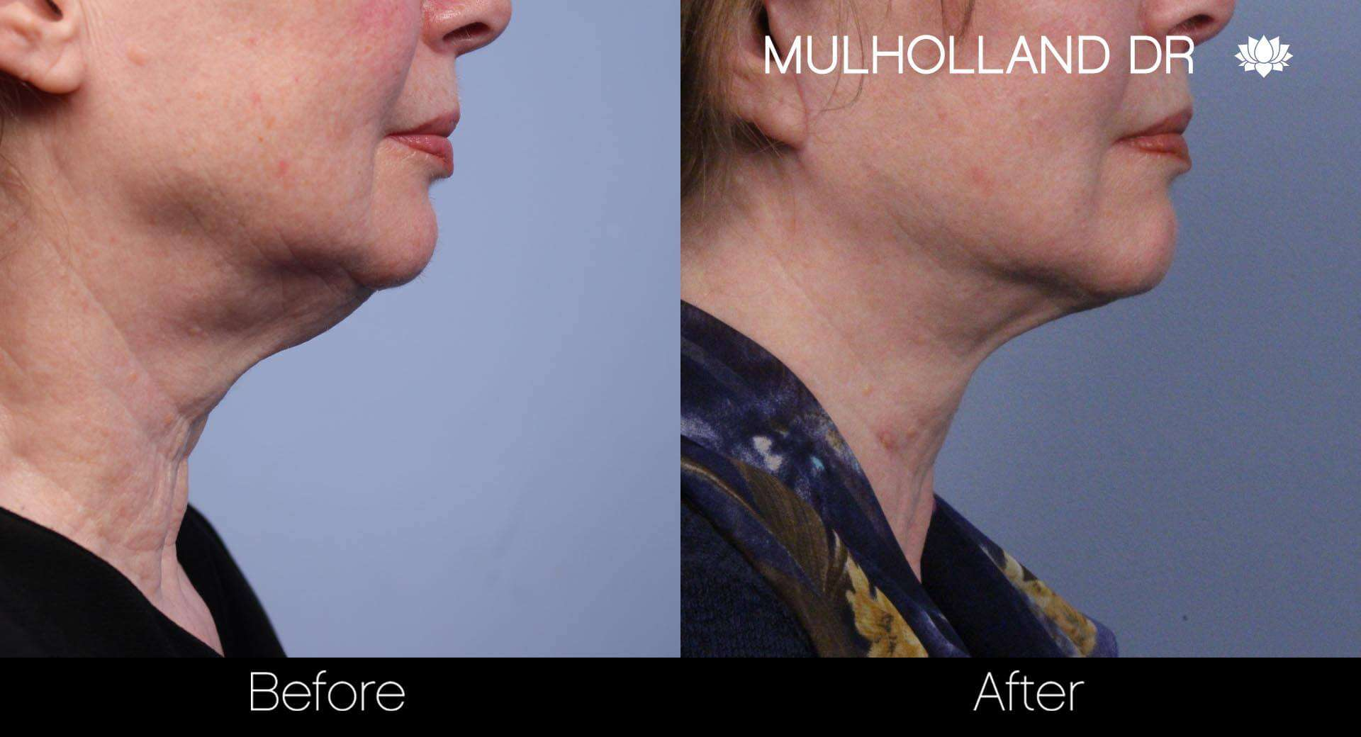 Neck Lift - Before and After Gallery - Patient Photo 59