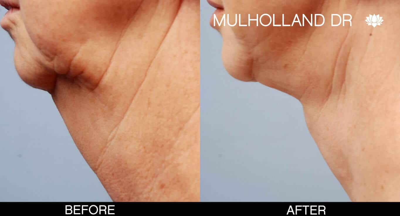Neck Lift - Before and After Gallery - Patient Photo 6