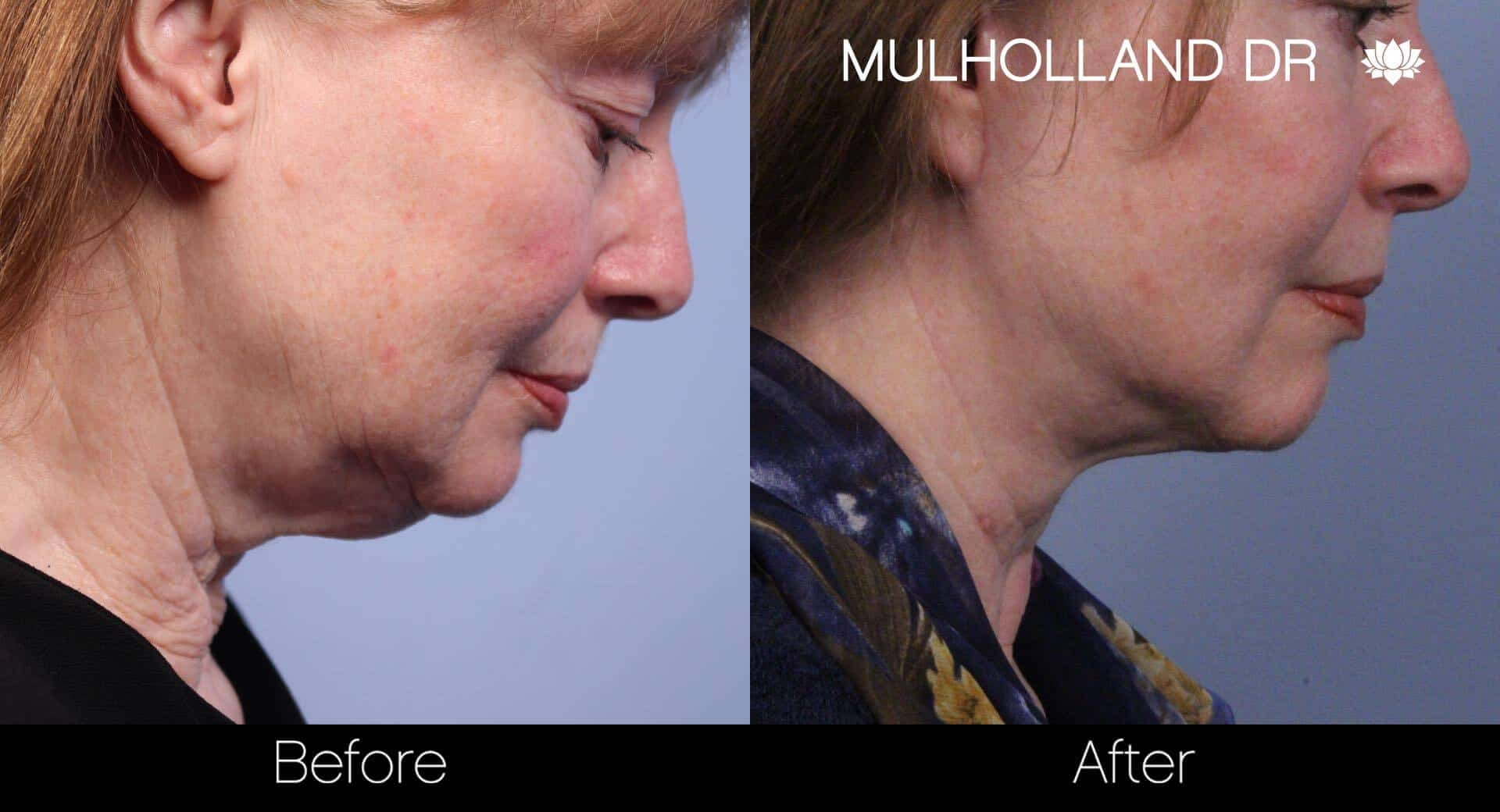 Neck Lift - Before and After Gallery - Patient Photo 60