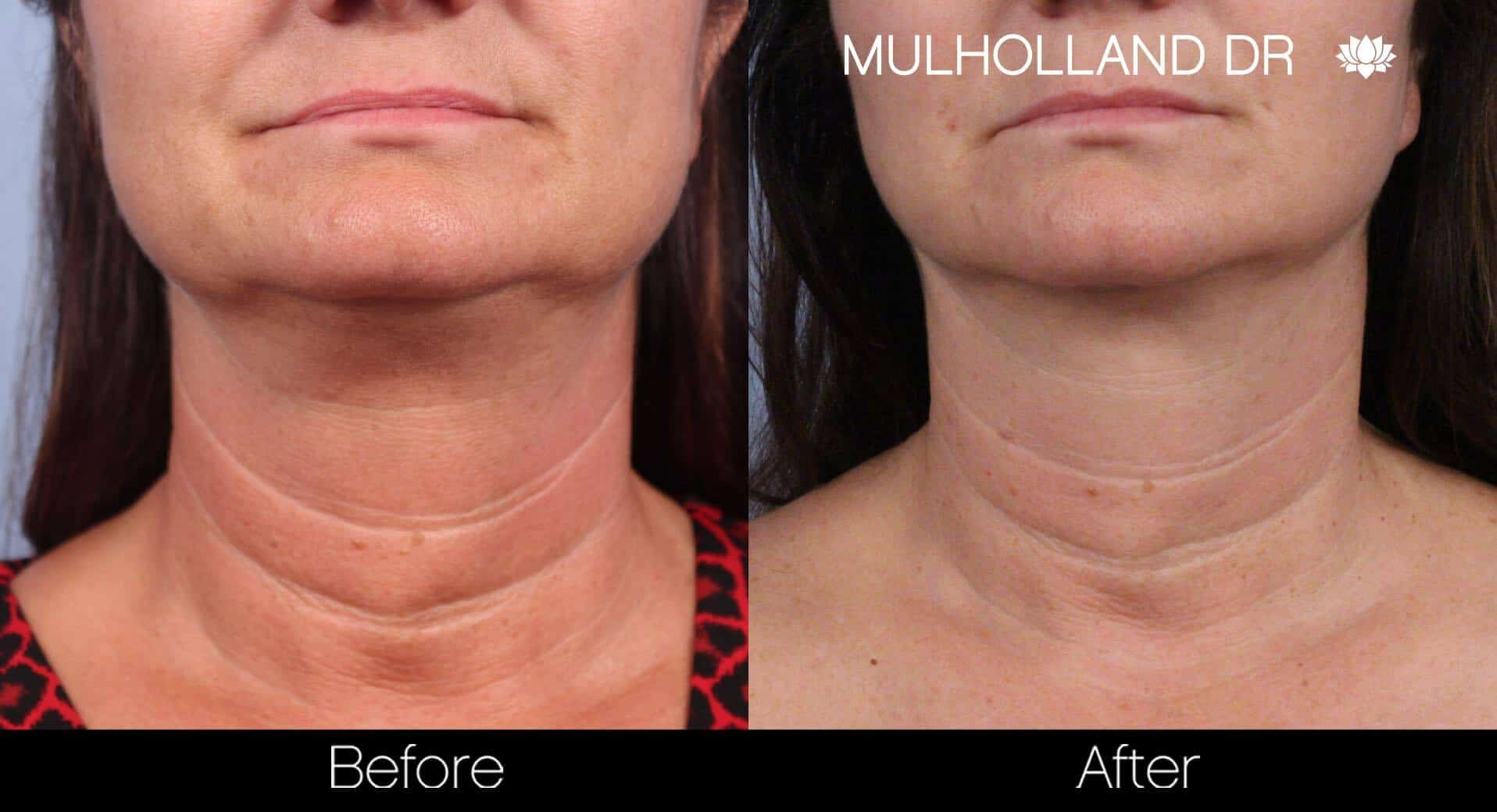 Neck Lift - Before and After Gallery - Patient Photo 61
