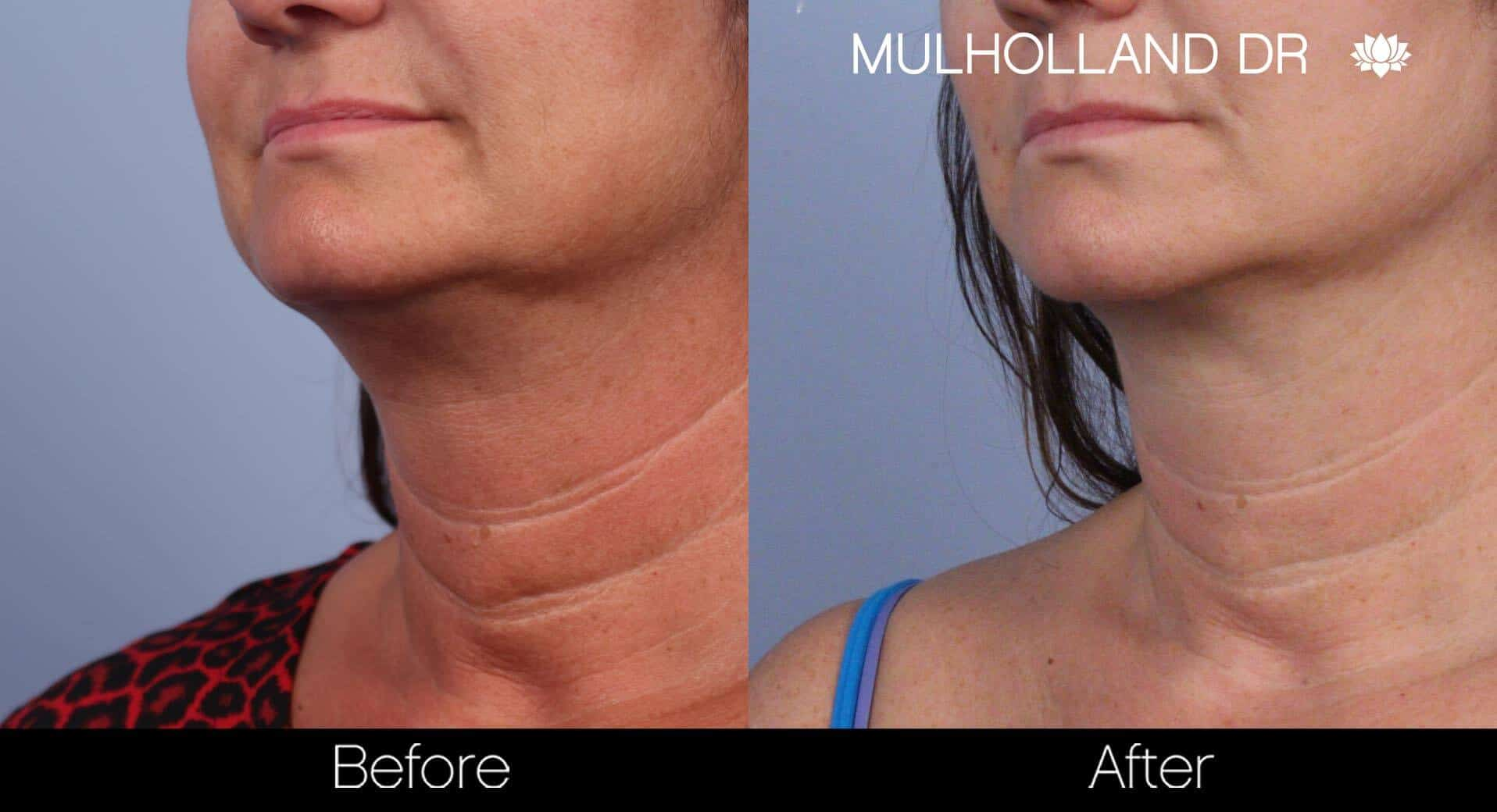 Neck Lift - Before and After Gallery - Patient Photo 62