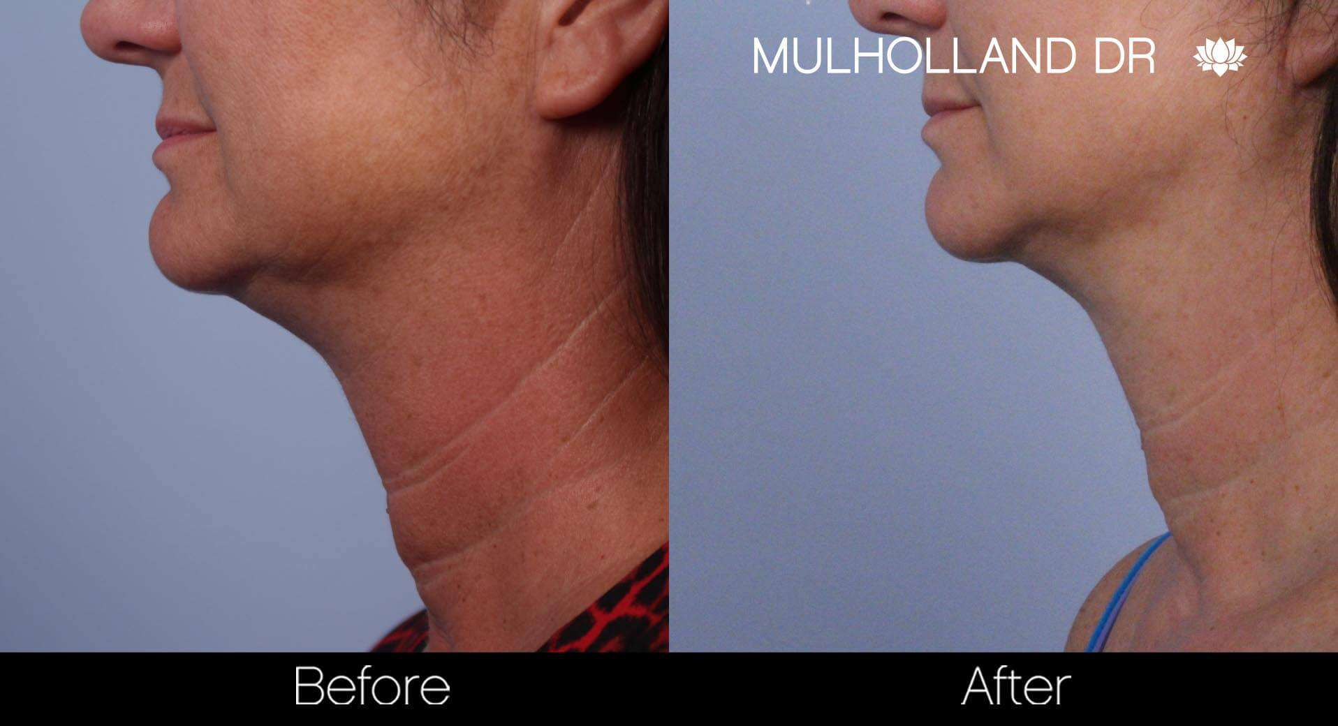 Neck Lift - Before and After Gallery - Patient Photo 63