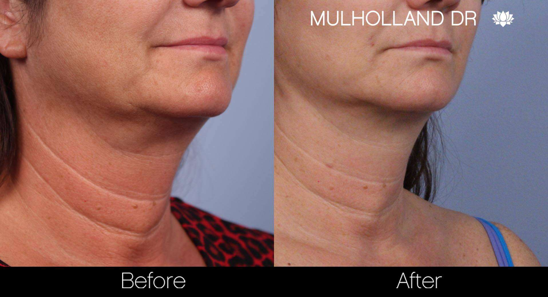 Neck Lift - Before and After Gallery - Patient Photo 64