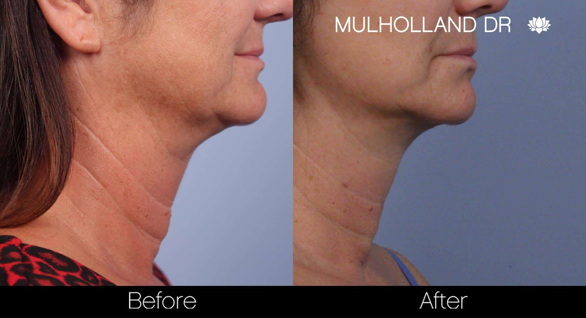 Neck Lift - Before and After Gallery - Patient Photo 65