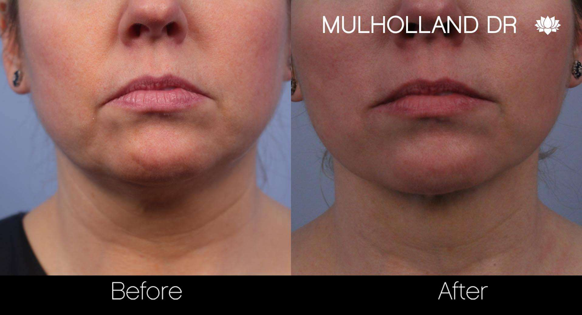 Neck Lift - Before and After Gallery - Patient Photo 66