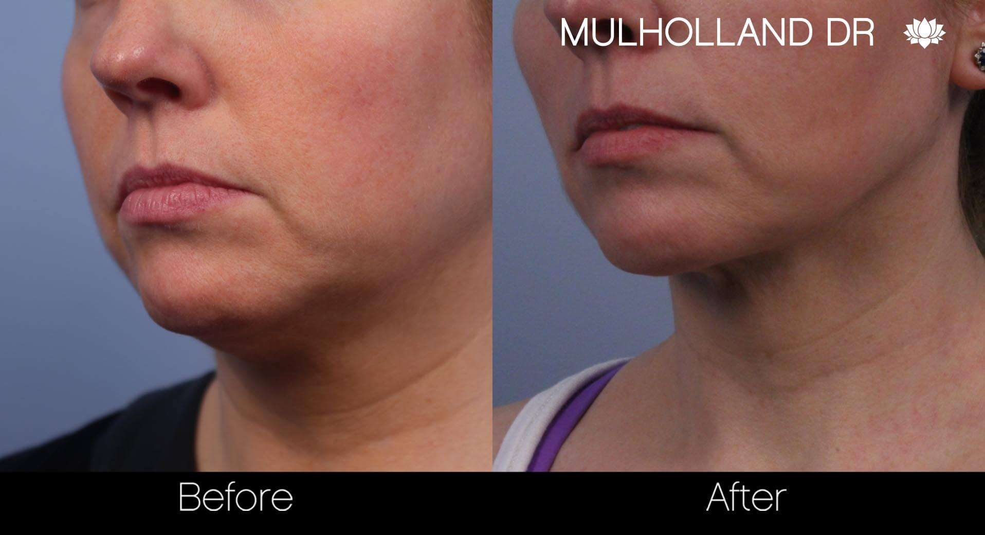 Neck Lift - Before and After Gallery - Patient Photo 67