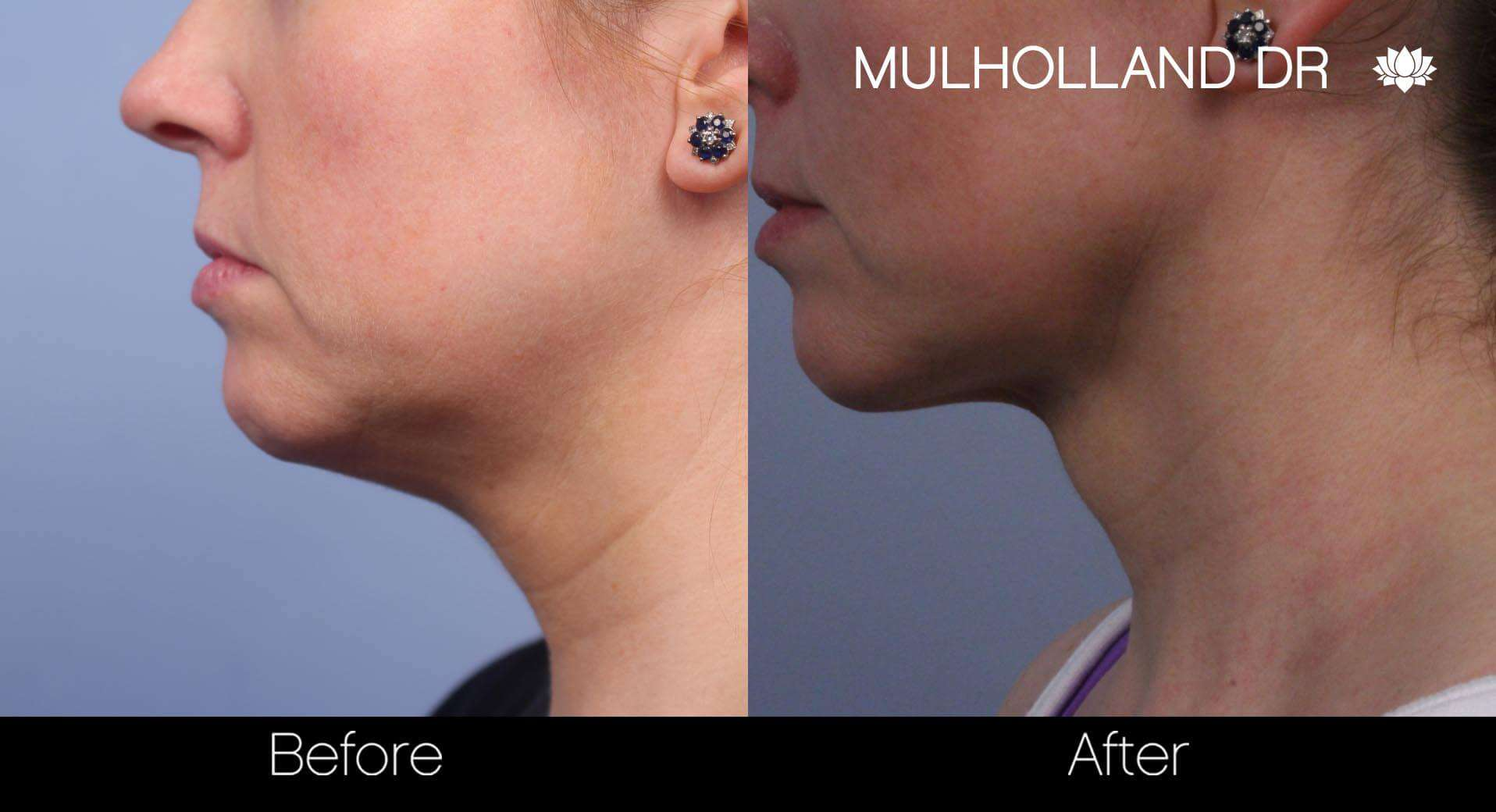 Neck Lift - Before and After Gallery - Patient Photo 68
