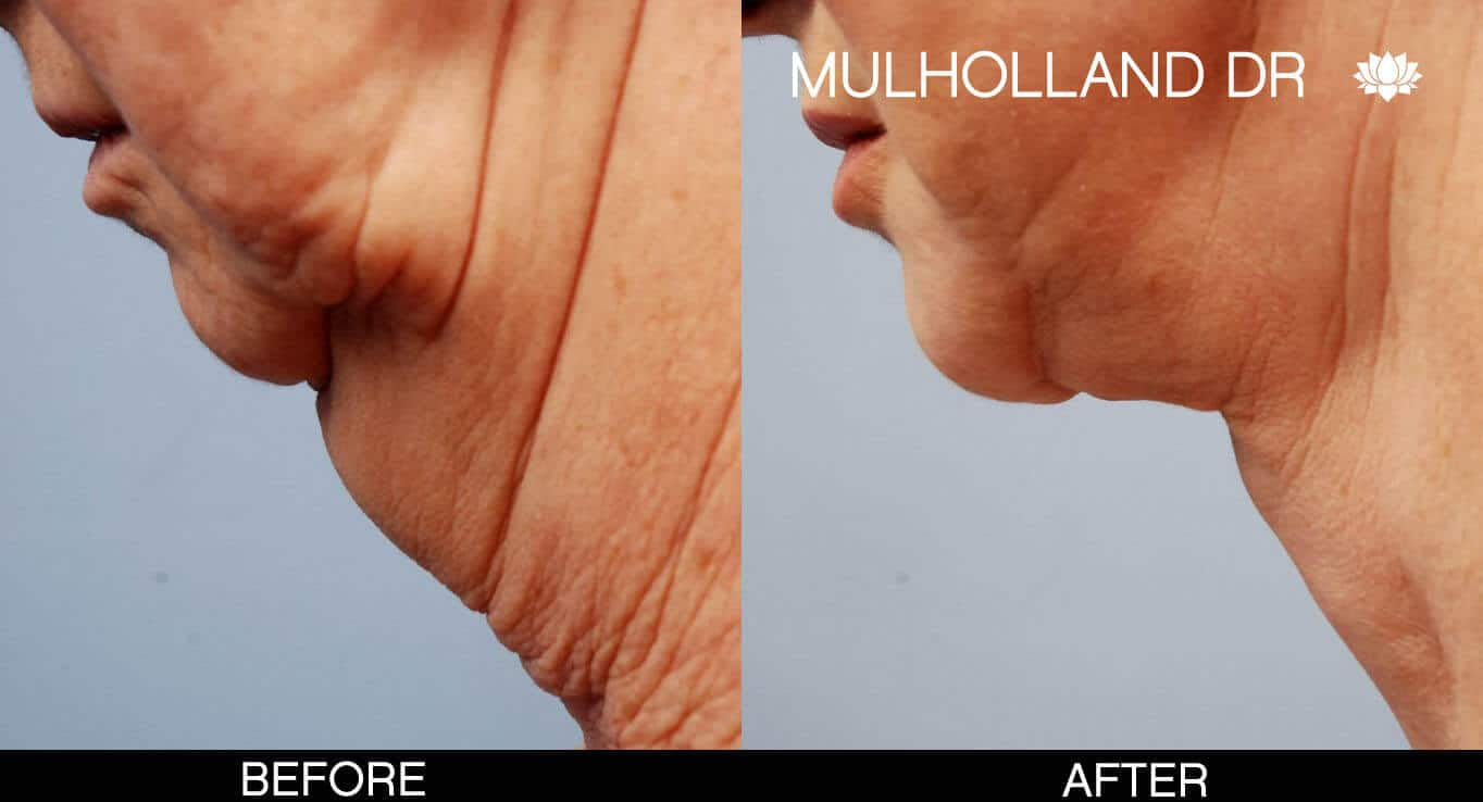 Neck Lift - Before and After Gallery - Patient Photo 7
