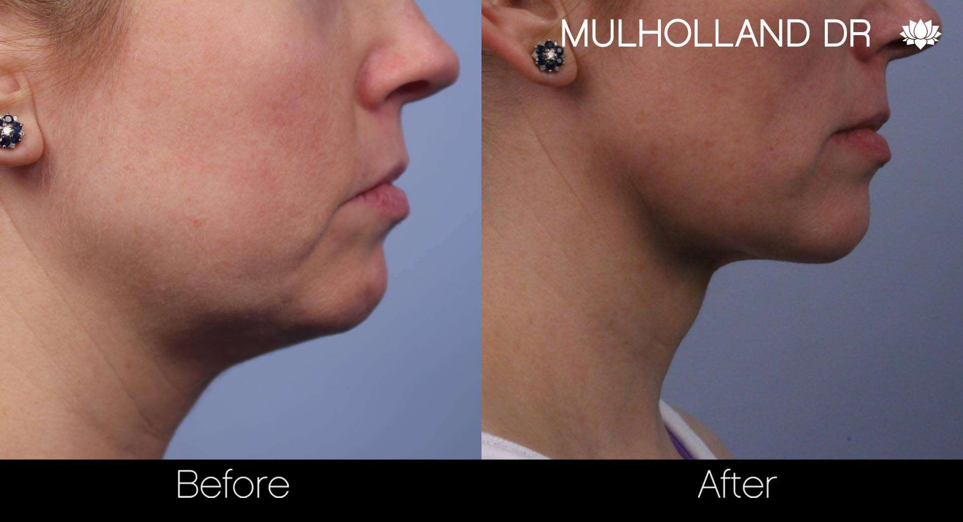 Neck Lift - Before and After Gallery - Patient Photo 70