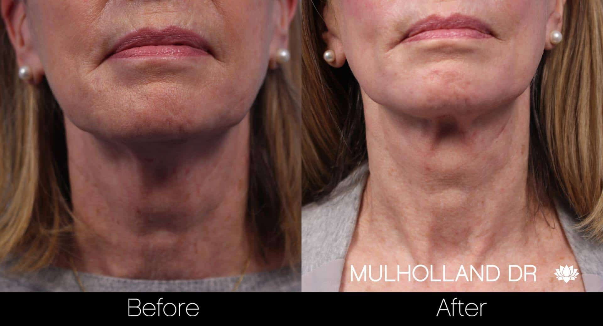 Neck Lift - Before and After Gallery - Patient Photo 71