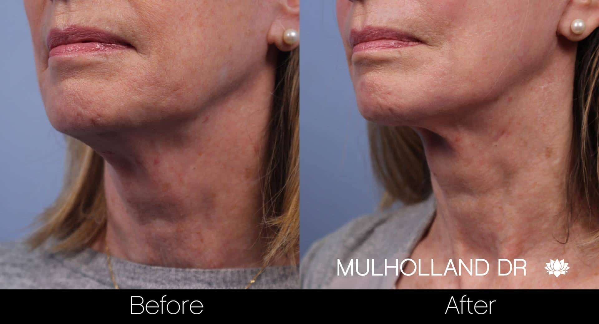 Neck Lift - Before and After Gallery - Patient Photo 72
