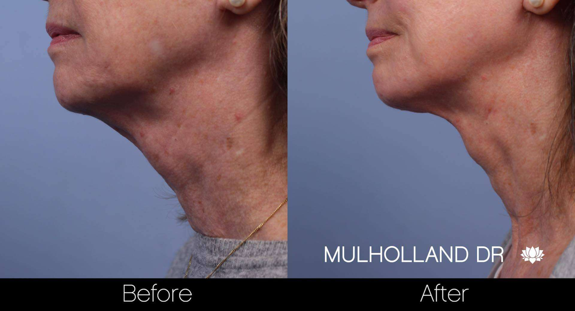 Neck Lift - Before and After Gallery - Patient Photo 73