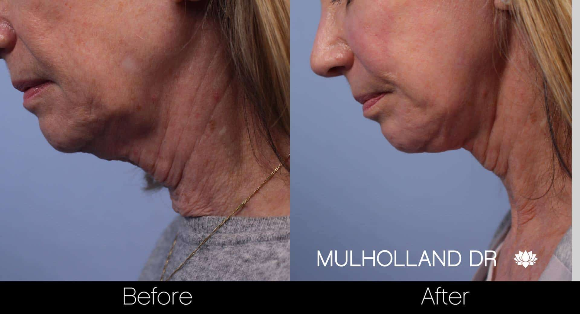 Neck Lift - Before and After Gallery - Patient Photo 74