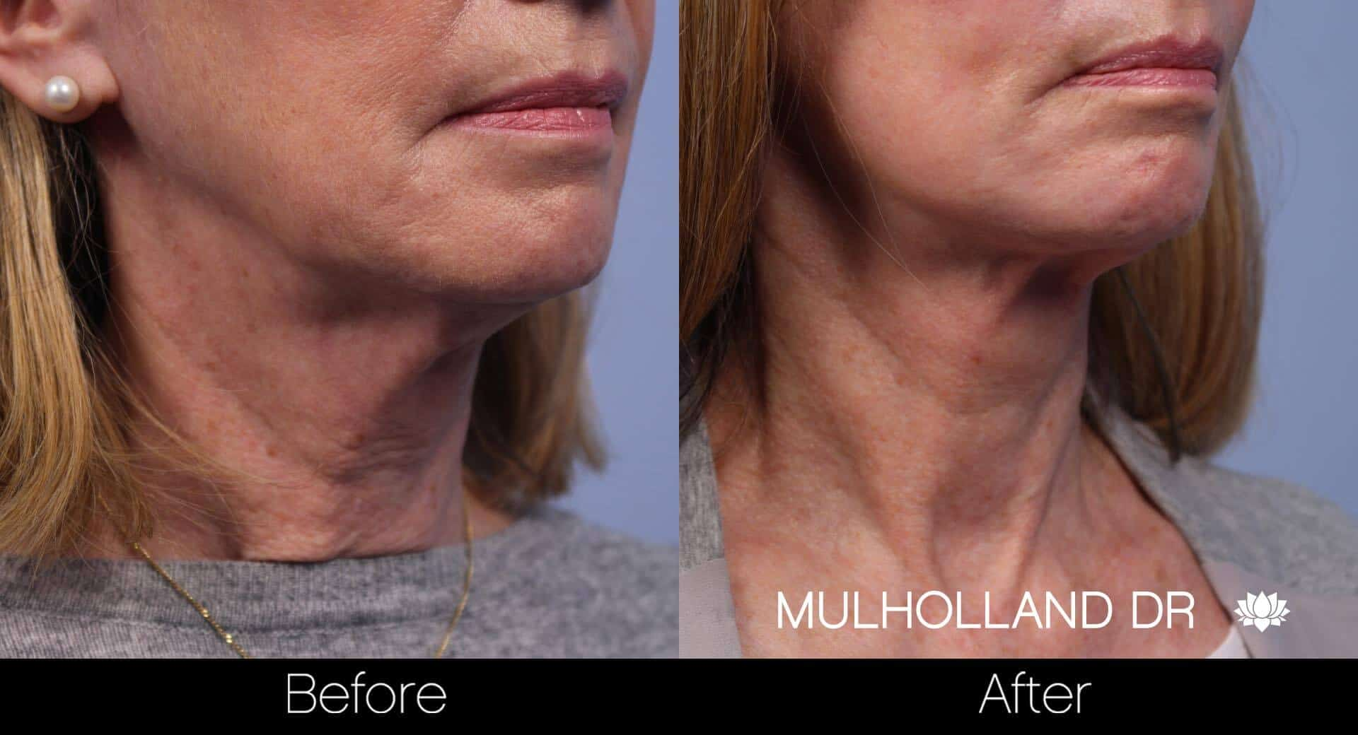 Neck Lift - Before and After Gallery - Patient Photo 75