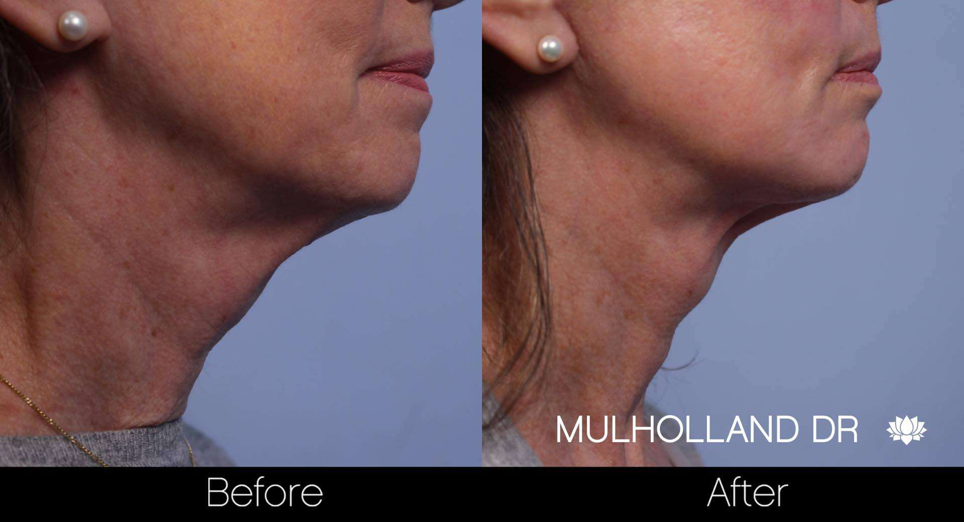 Neck Lift - Before and After Gallery - Patient Photo 76