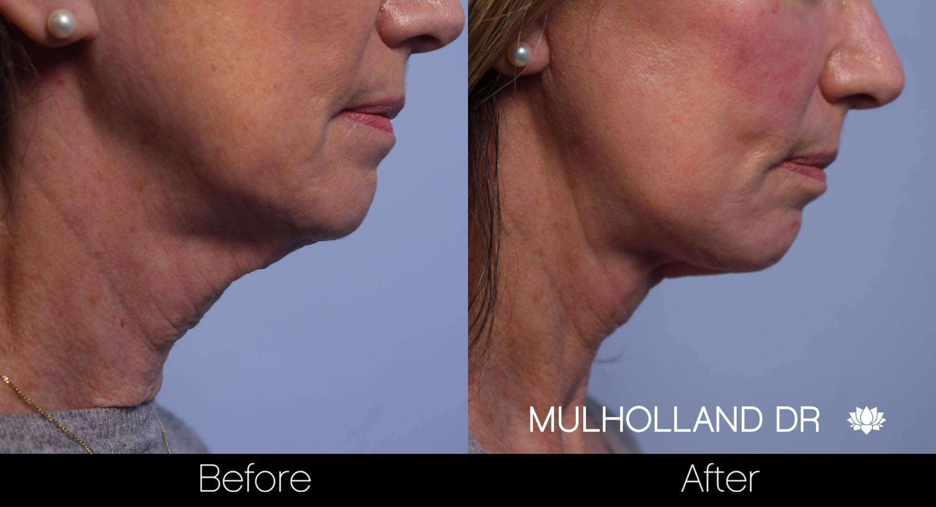 Neck Lift - Before and After Gallery - Patient Photo 77