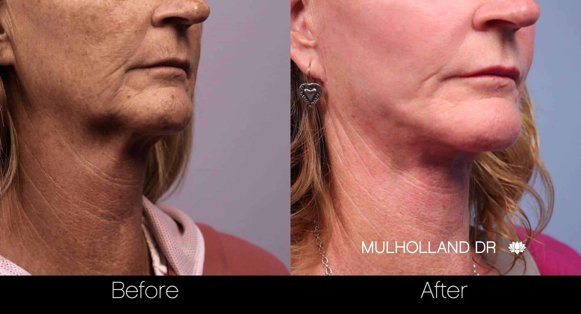 Neck Lift - Before and After Gallery - Patient Photo 78