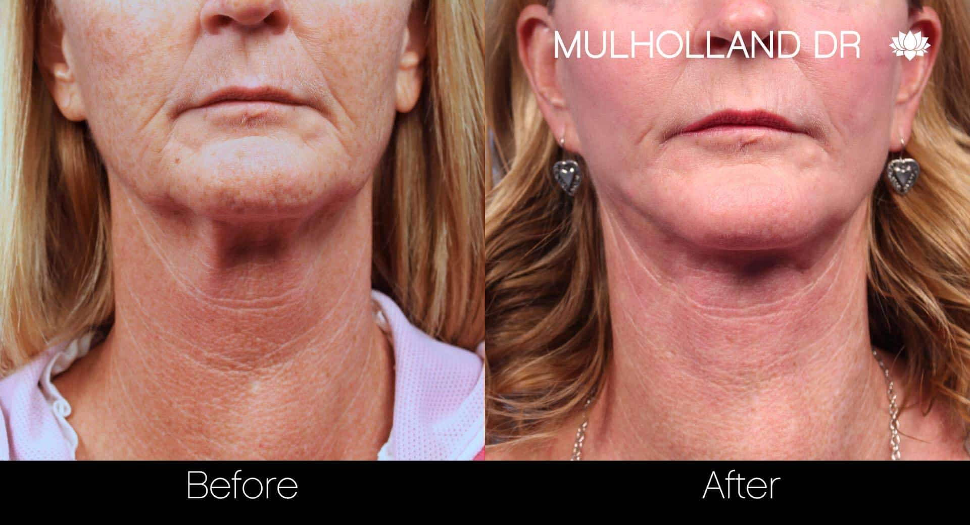 Neck Lift - Before and After Gallery - Patient Photo 79