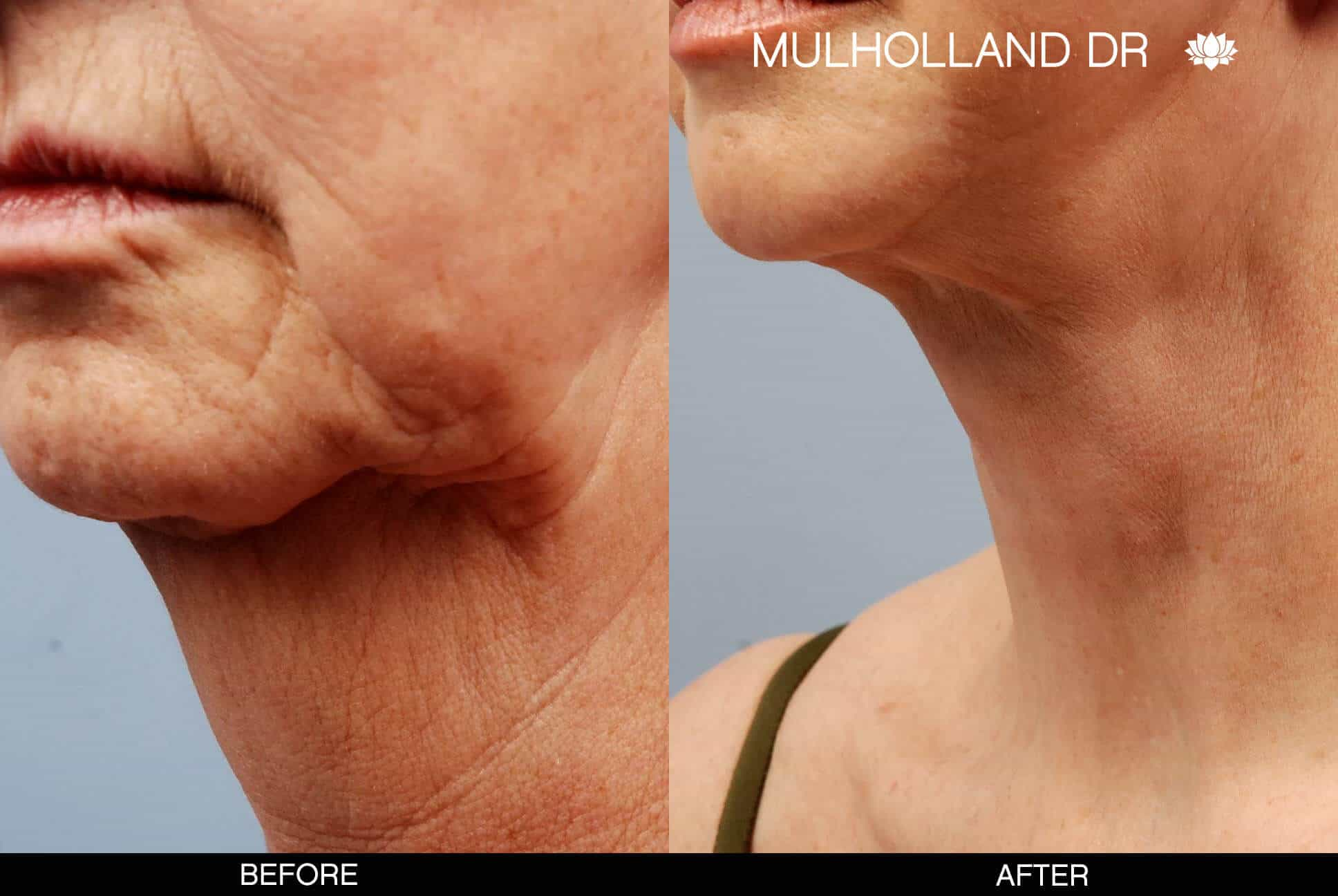 Neck Lift - Before and After Gallery - Patient Photo 8