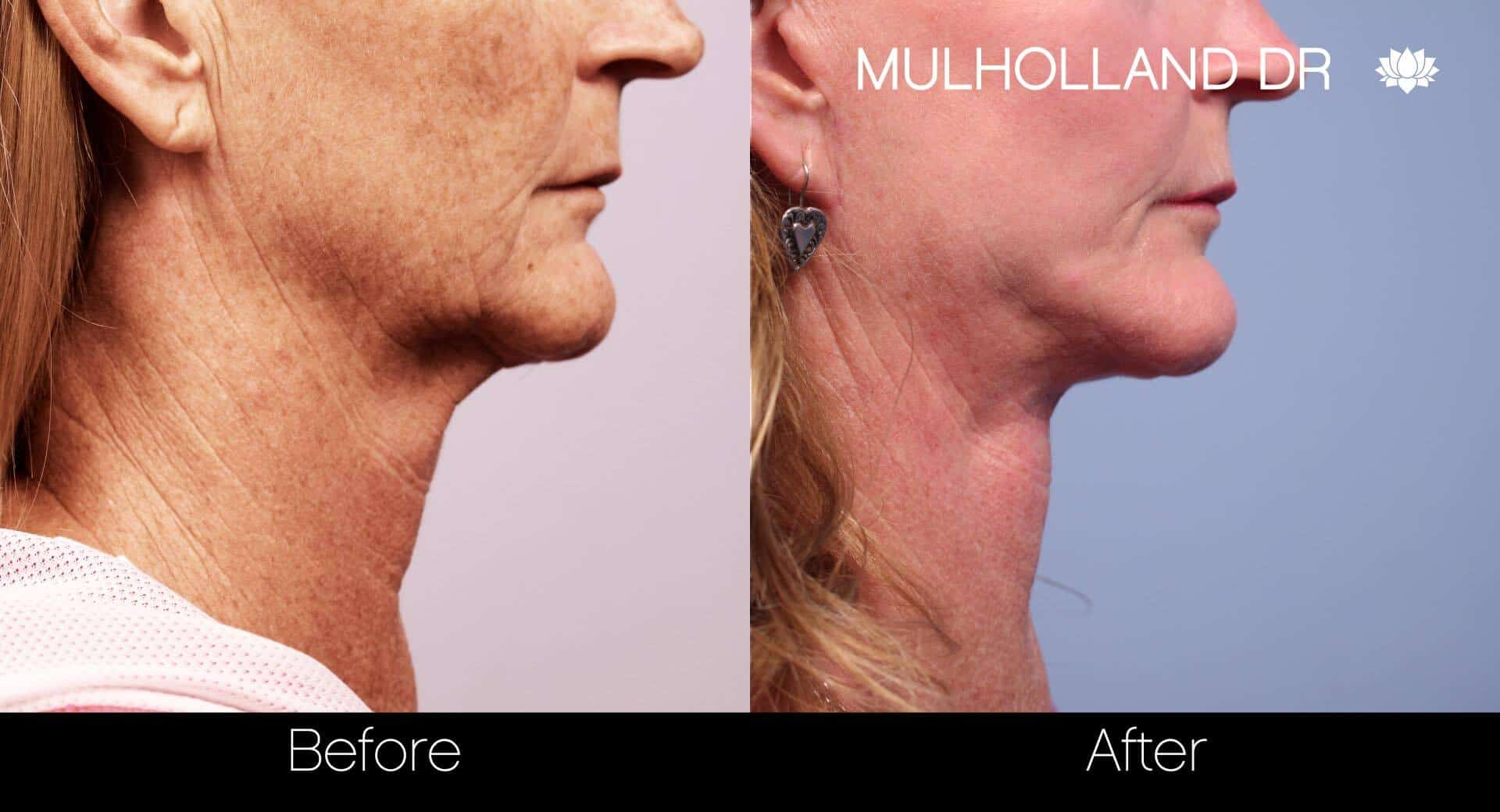 Neck Lift - Before and After Gallery - Patient Photo 80