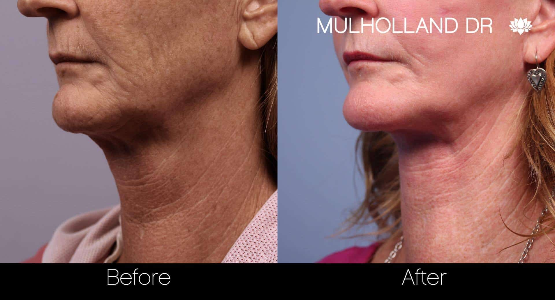 Neck Lift - Before and After Gallery - Patient Photo 81
