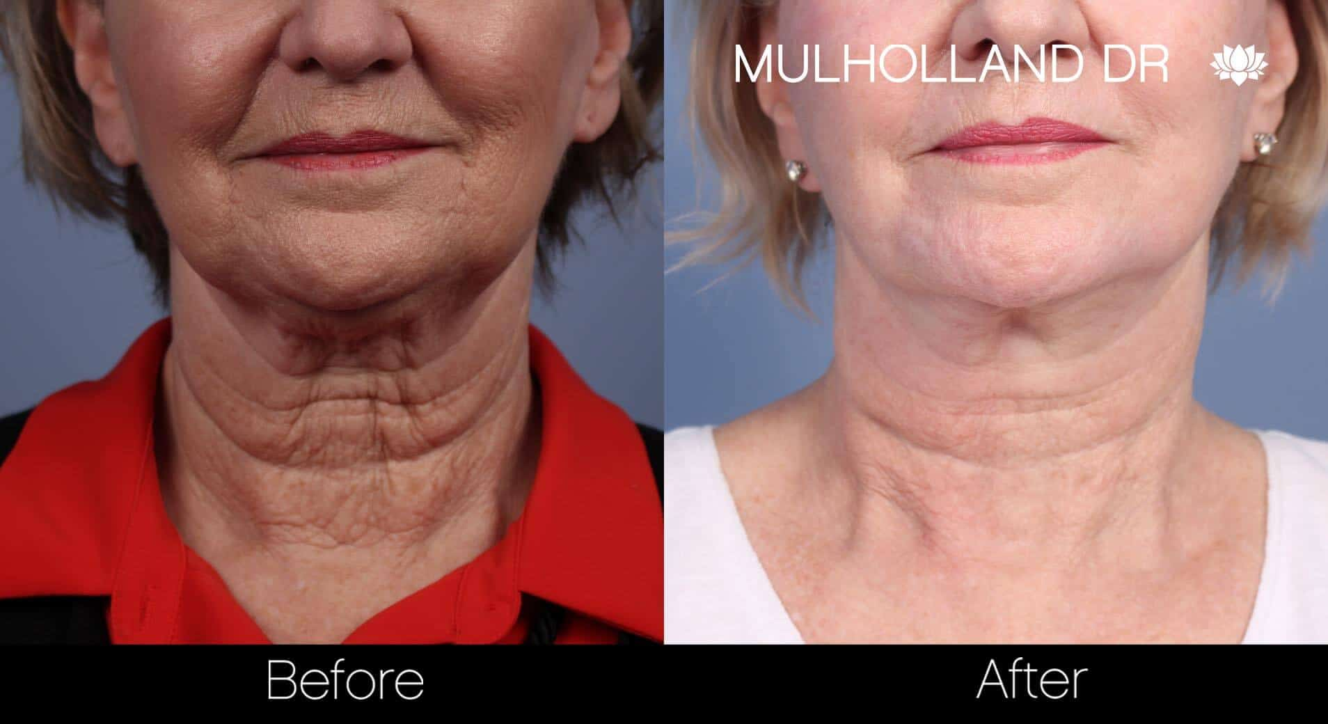Neck Lift - Before and After Gallery - Patient Photo 82