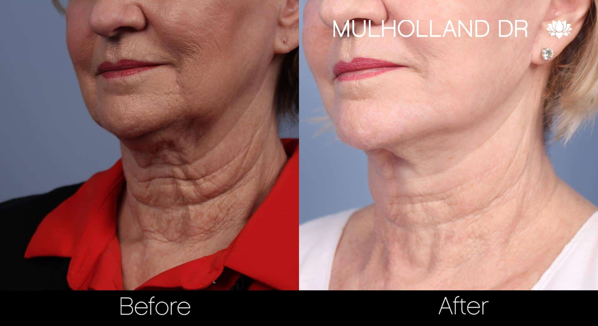 Neck Lift - Before and After Gallery - Patient Photo 83