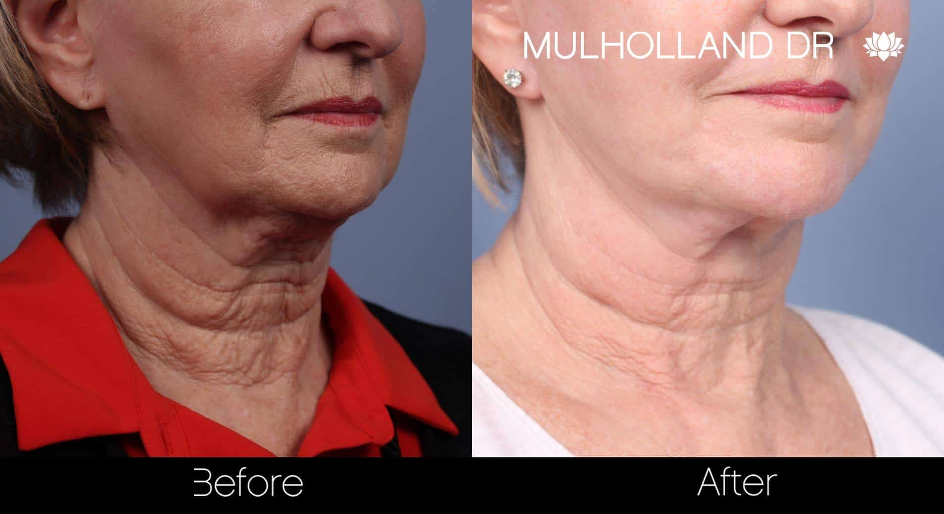 Neck Lift - Before and After Gallery - Patient Photo 84
