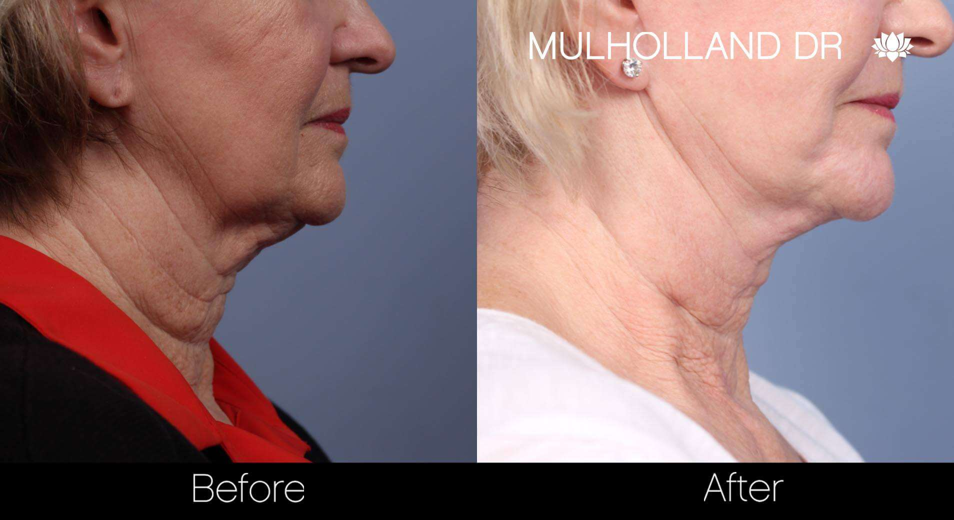 Neck Lift - Before and After Gallery - Patient Photo 85