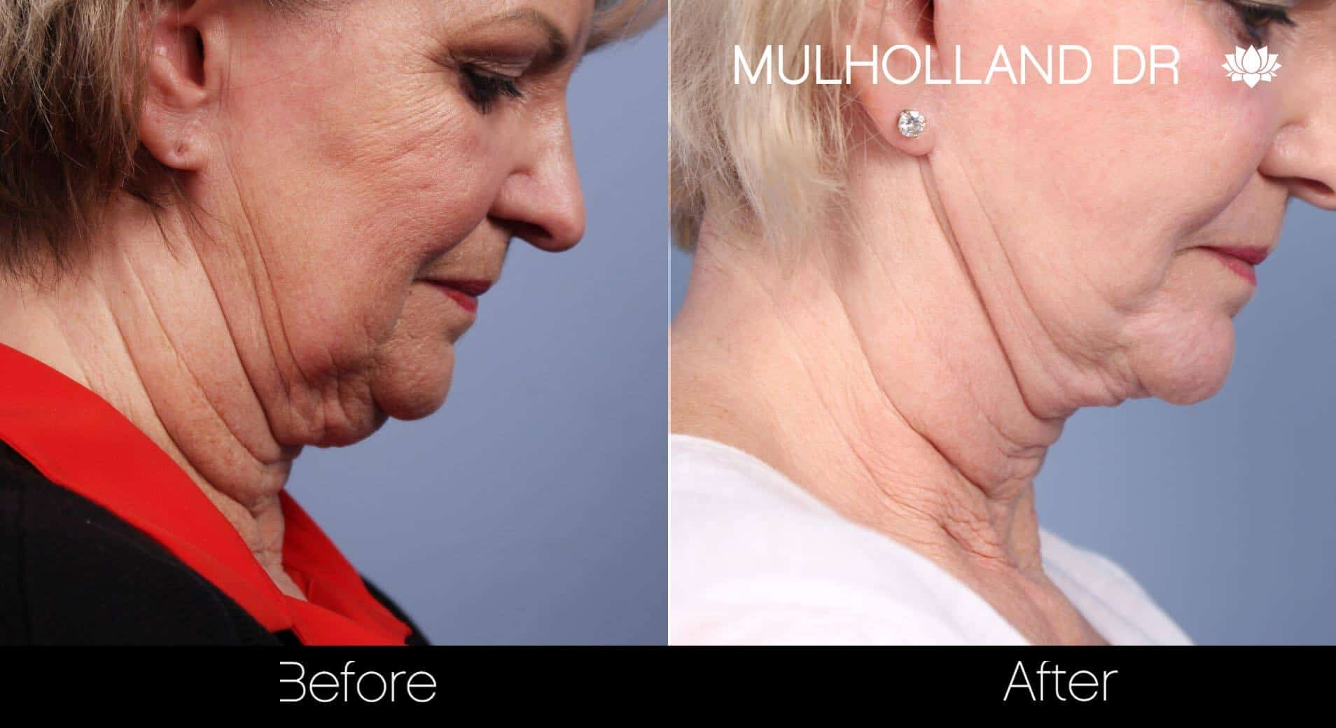 Neck Lift - Before and After Gallery - Patient Photo 86