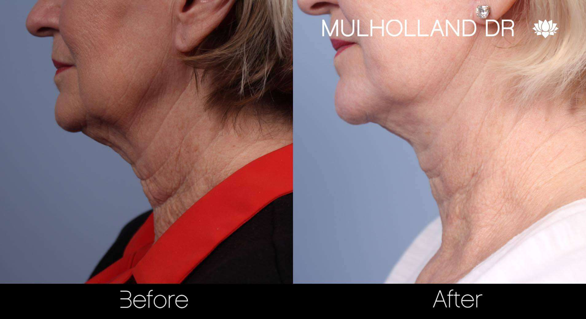 Neck Lift - Before and After Gallery - Patient Photo 87