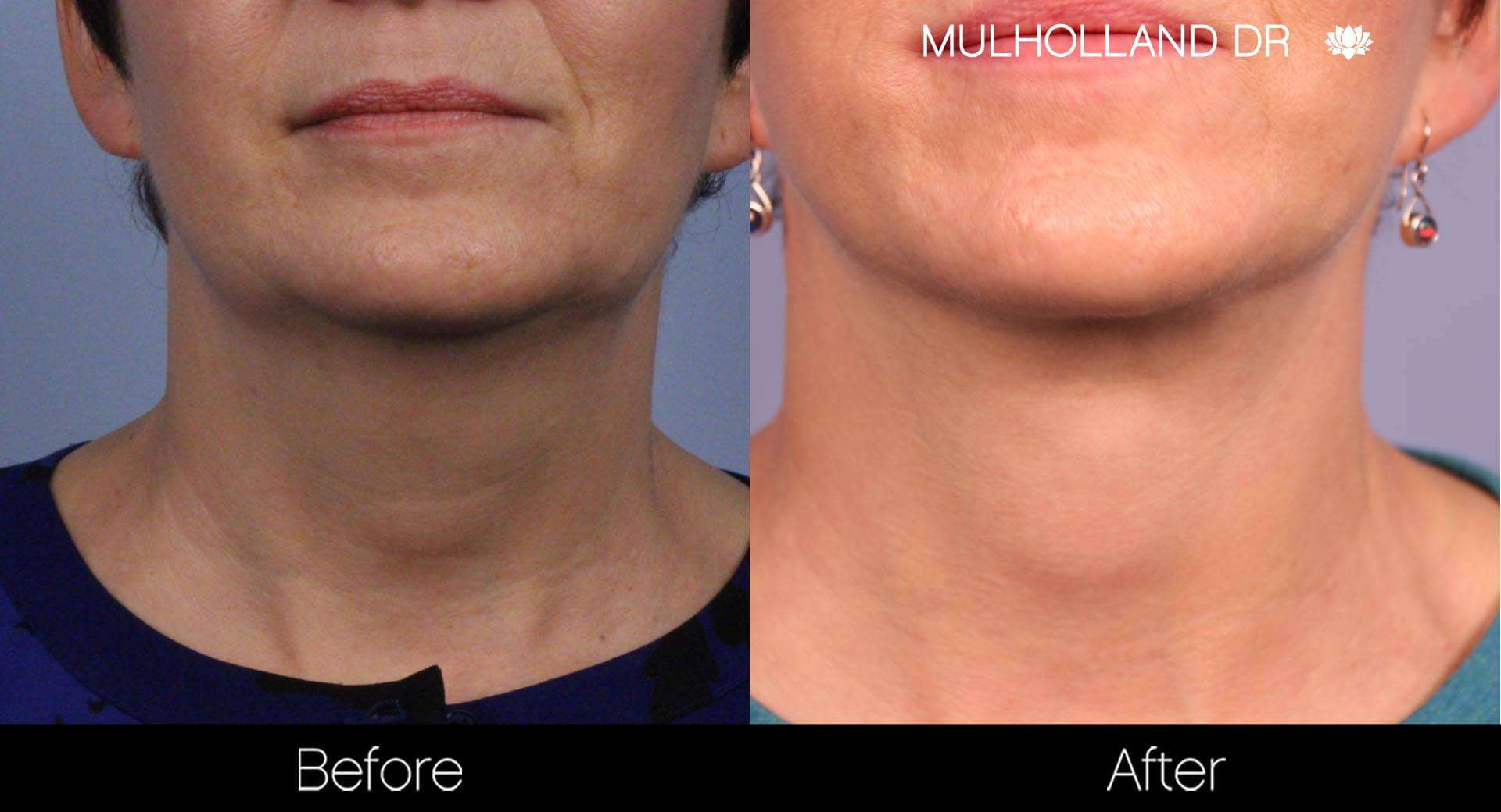 Neck Lift - Before and After Gallery - Patient Photo 88