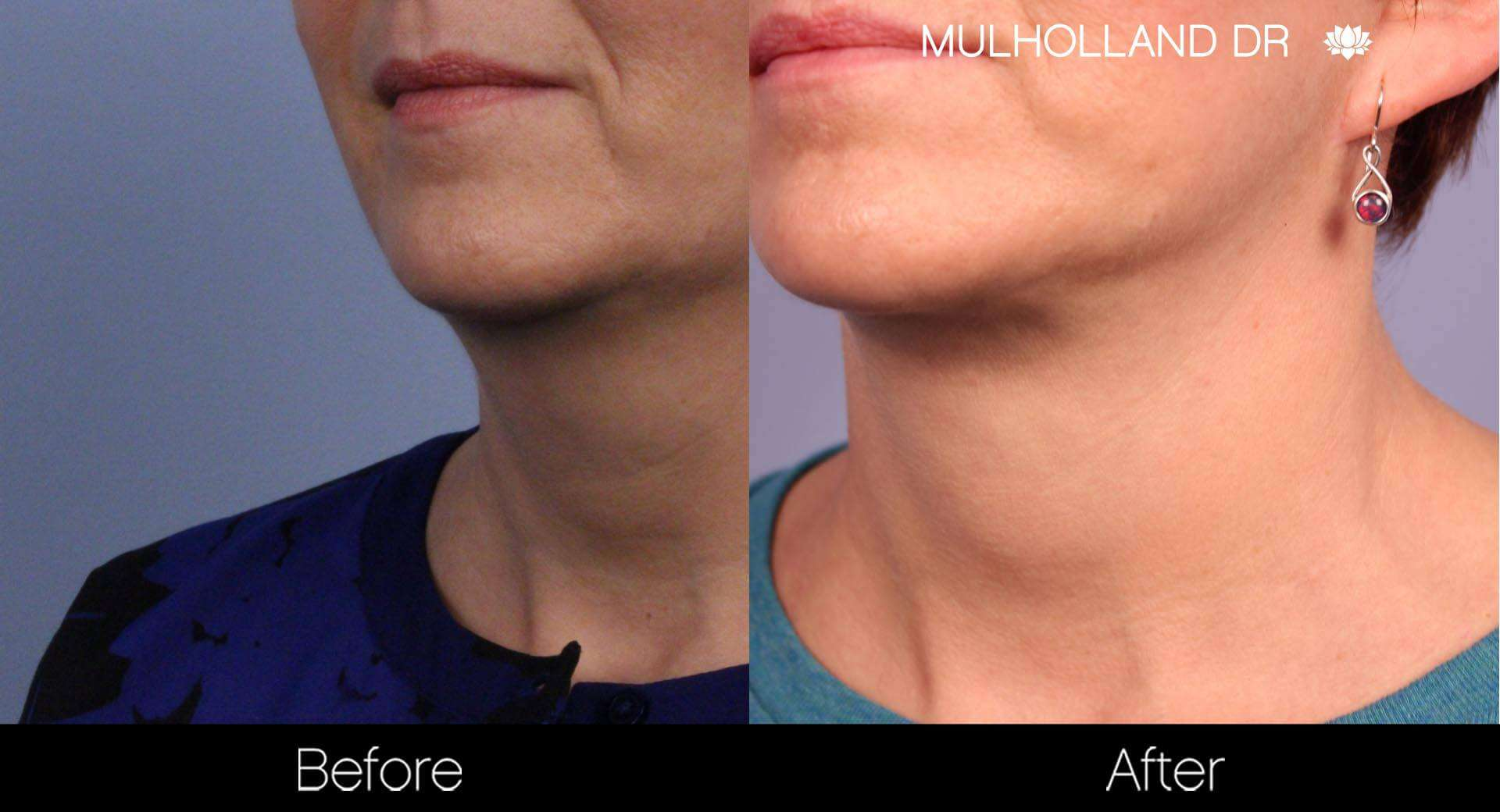 Neck Lift - Before and After Gallery - Patient Photo 89