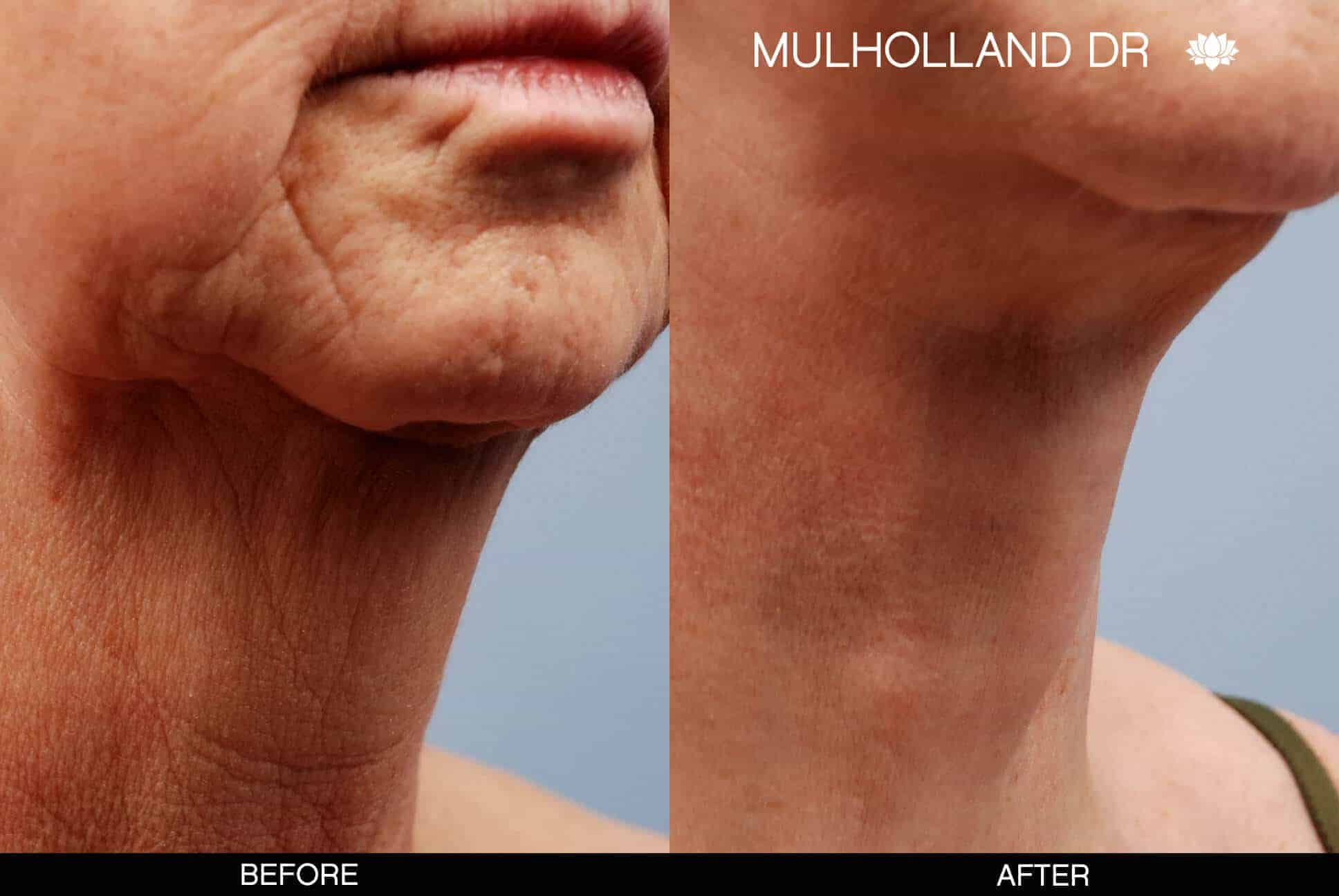 Neck Lift - Before and After Gallery - Patient Photo 9