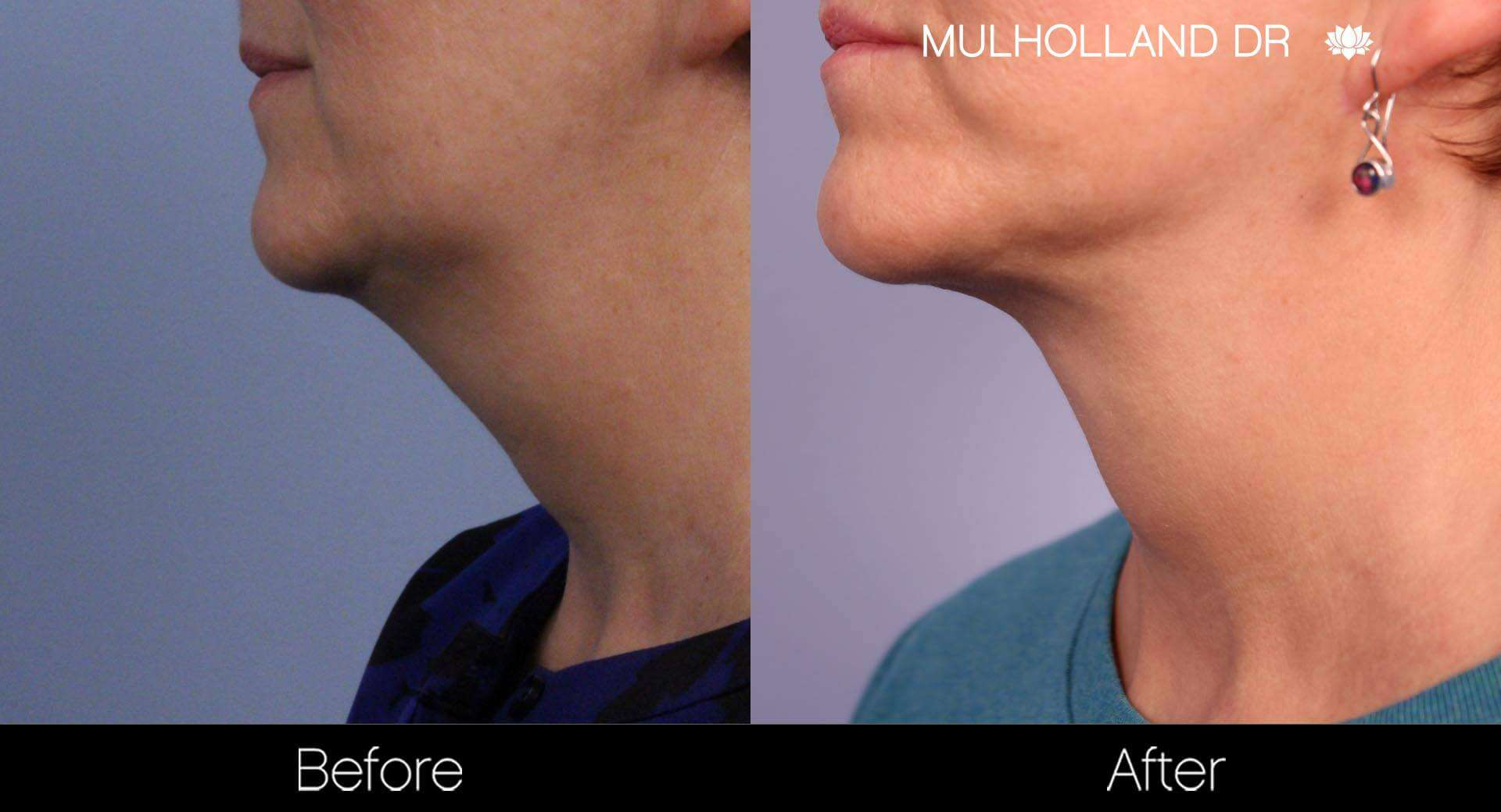 Neck Lift - Before and After Gallery - Patient Photo 90