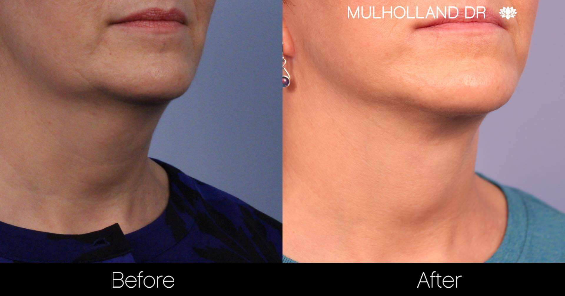 Neck Lift - Before and After Gallery - Patient Photo 91