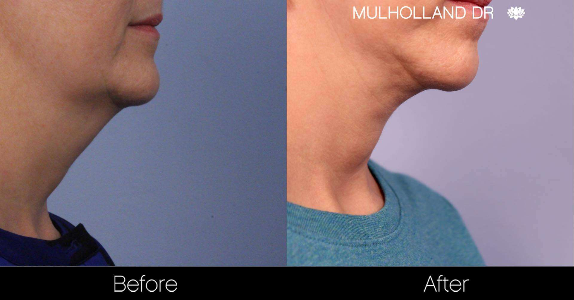 Neck Lift - Before and After Gallery - Patient Photo 92
