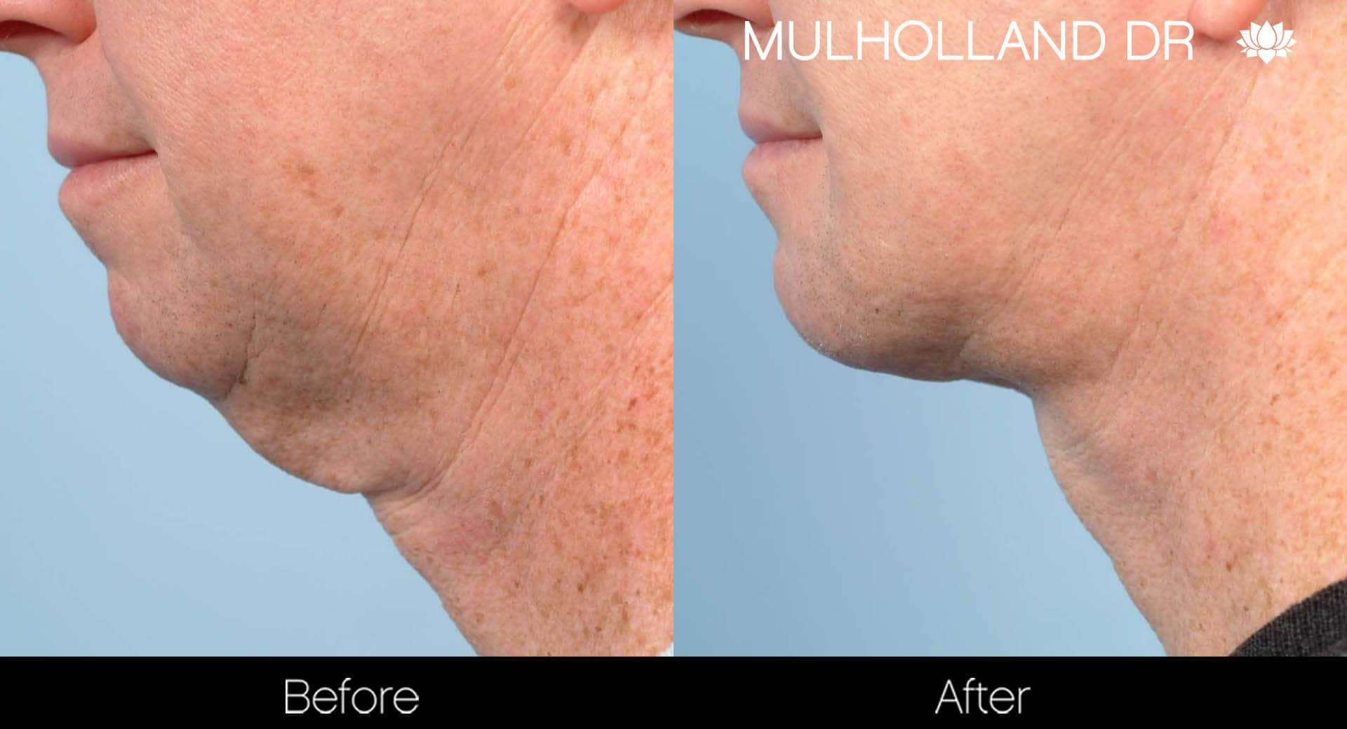 Neck Lift - Before and After Gallery - Patient Photo 97