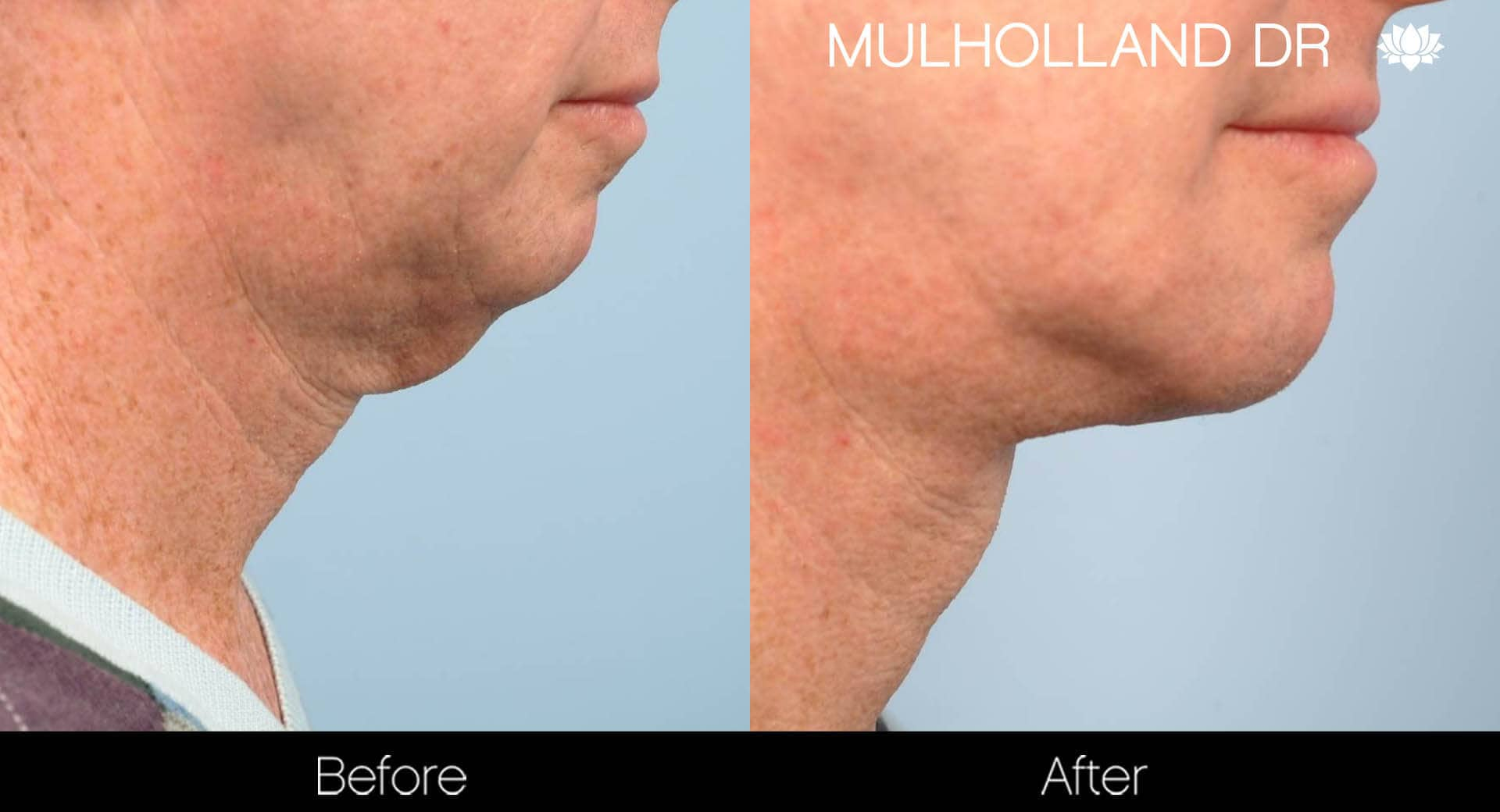Neck Lift - Before and After Gallery - Patient Photo 98