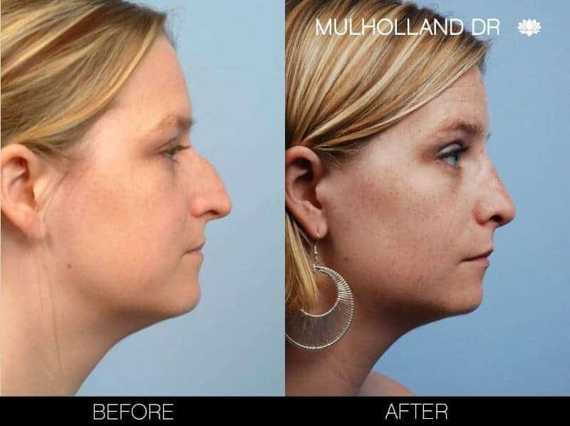 Rhinoplasty - Before and After Gallery - Patient Photo 10