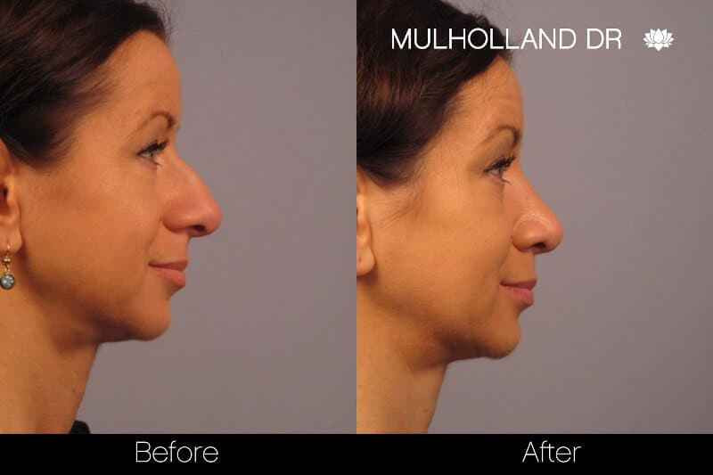 Rhinoplasty - Before and After Gallery - Patient Photo 11
