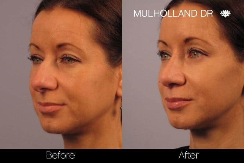Rhinoplasty - Before and After Gallery - Patient Photo 14